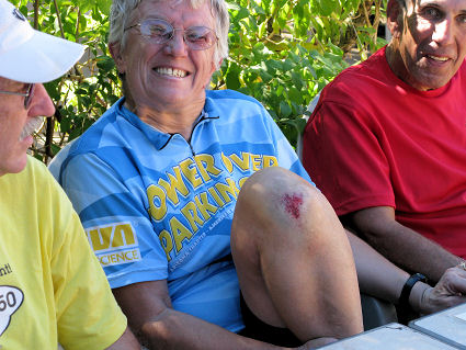 Bicycling is not for the faint of heart